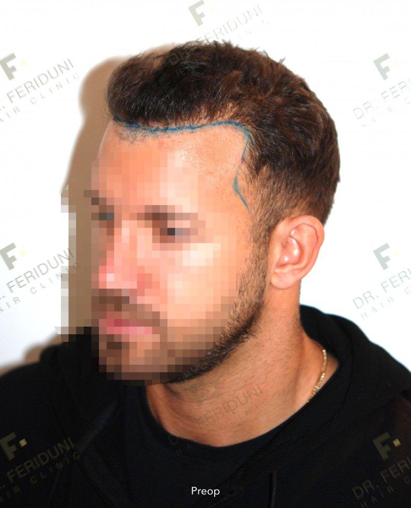 0. Preop Hairline.jpg