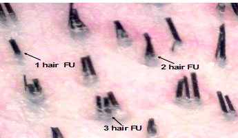 3 hair follicular unit.jpg
