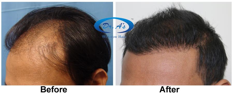 A comparison picture 226_49.jpg