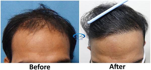 A228 - Hair-Transplant Result -DrAsClinic (1).jpg