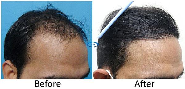 A228 - Hair-Transplant Result -DrAsClinic (2).jpg