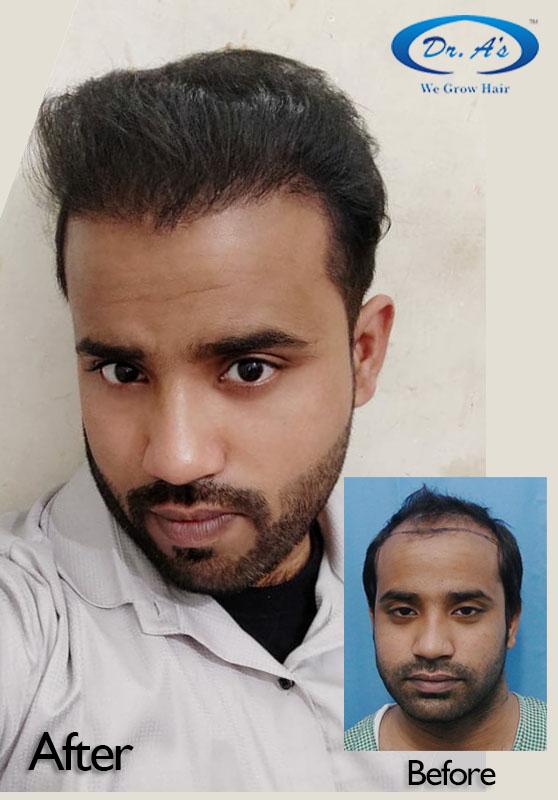 A229 - Hair Transplant Result - DrAsClinic (1).JPG