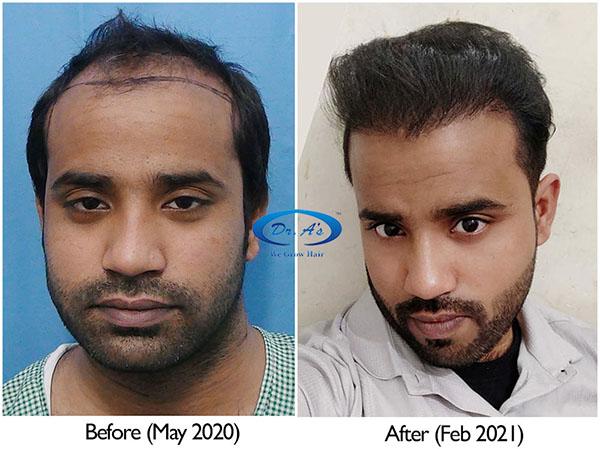 A229 - Hair Transplant Result - DrAsClinic (2).jpg