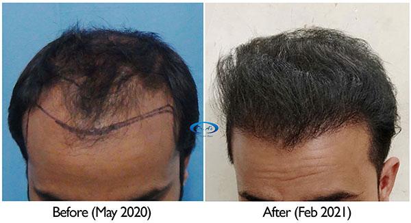 A229 - Hair Transplant Result - DrAsClinic (3).jpg