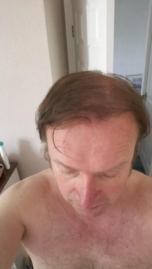 AEK Hair Transplant.jpg