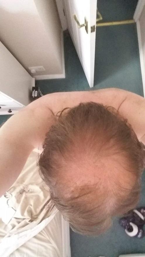 Aek Hair transplant1.jpg