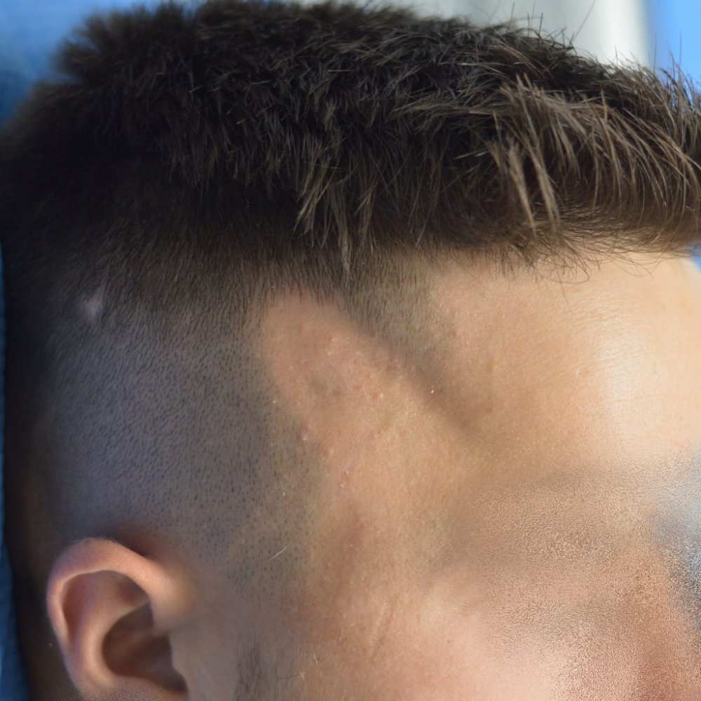 alopecia trico.jpg