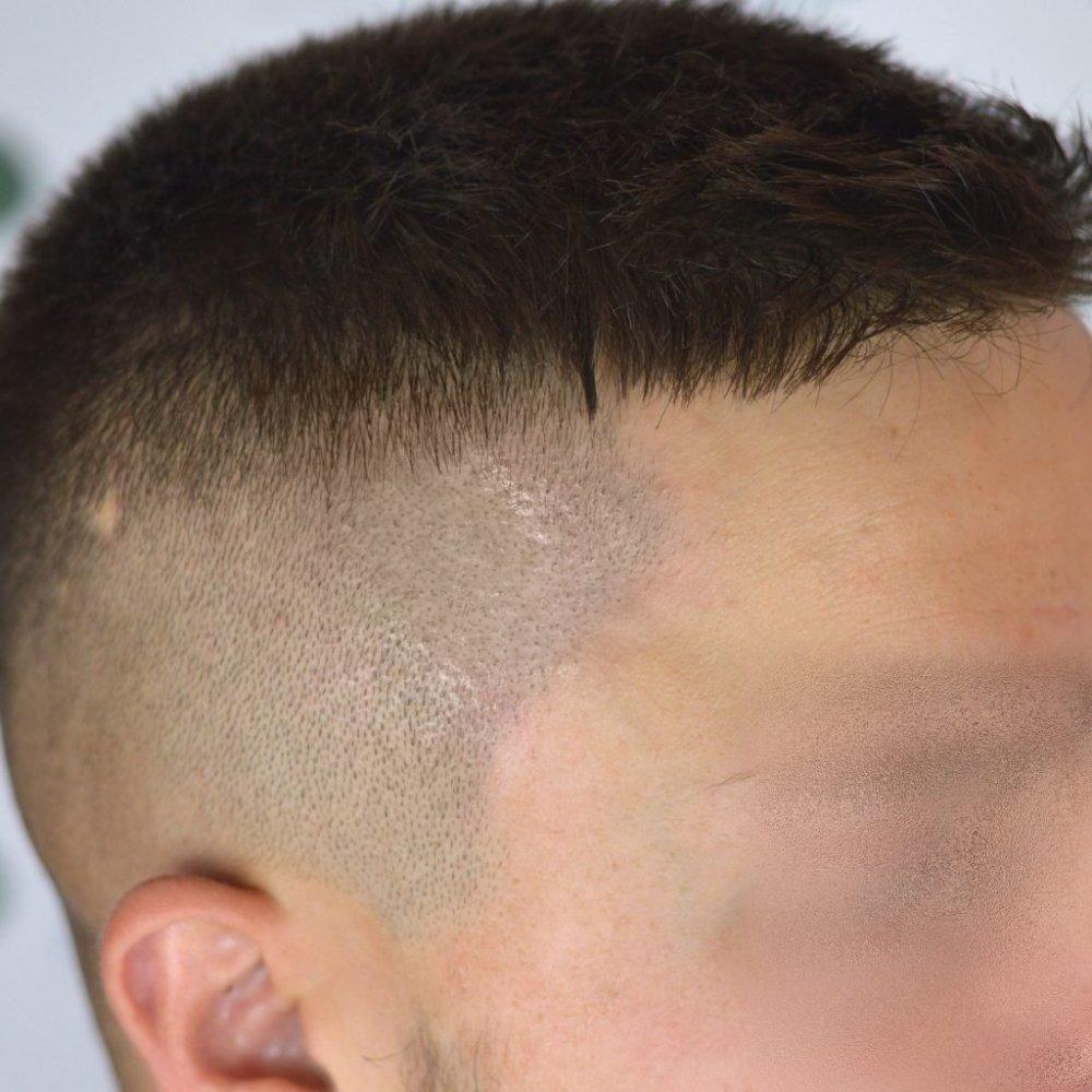 alopecia trico2.jpg