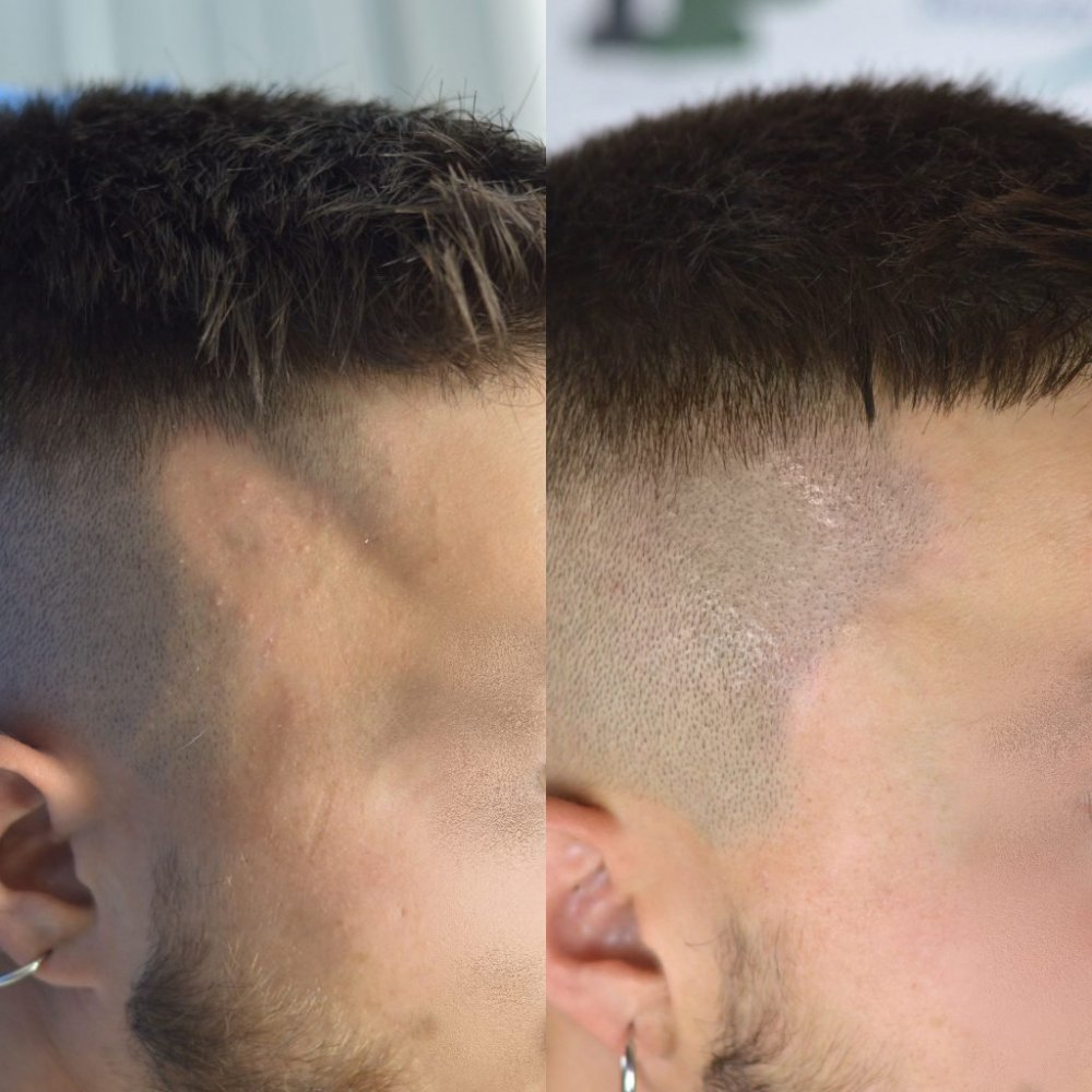 alopecia trico3.jpg