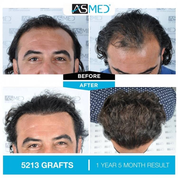 Asmed Hair Transplant Istanbul1.jpg