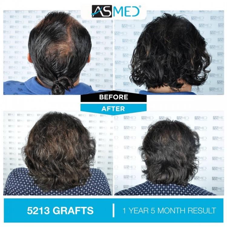 Asmed Hair Transplant Istanbul2.jpg