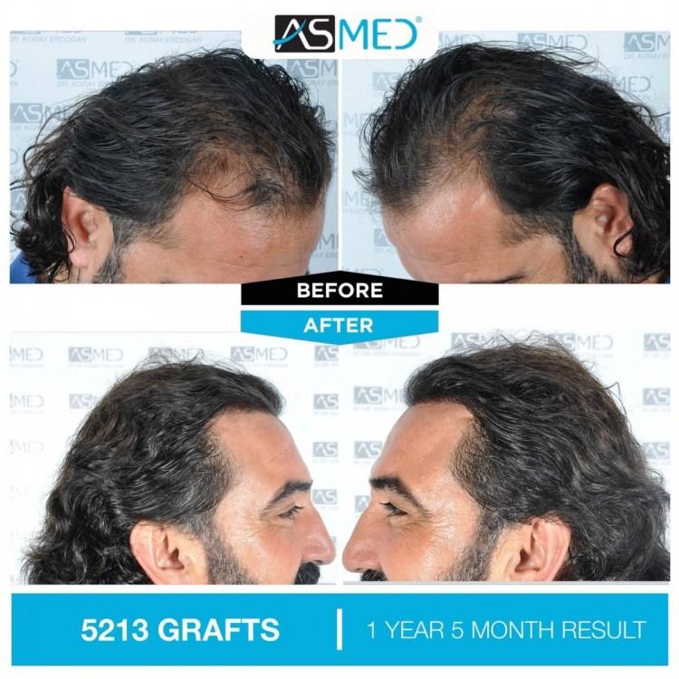 Asmed Hair Transplant Istanbul3.jpg