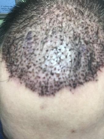 bad hair transplant 1.jpeg