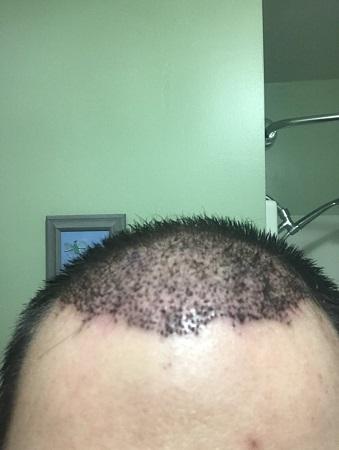 bad hair transplant 2.jpeg