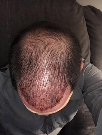 Bad hair transplant.jpeg