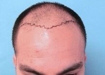 Before-and-After-Hair-Transplantation-on-Male-Patient.jpg