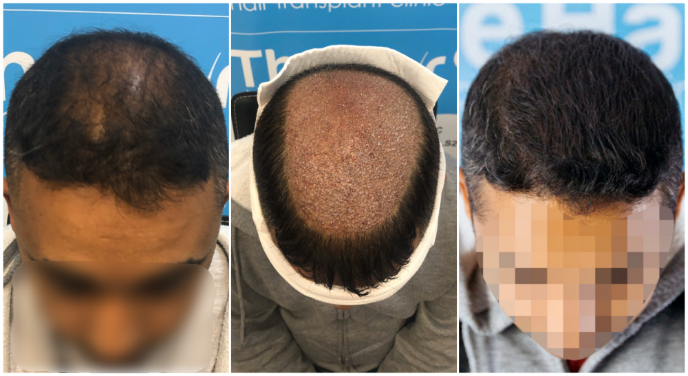 before-placement-after-fut-hairdr-dr-arshad-top.png