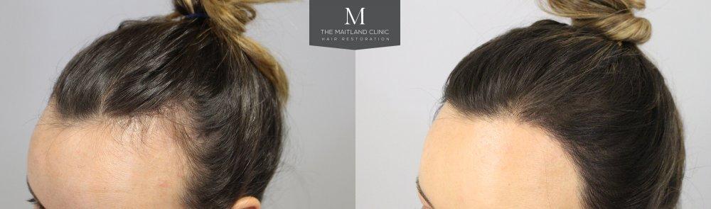 Before_After_left_hairline.jpg