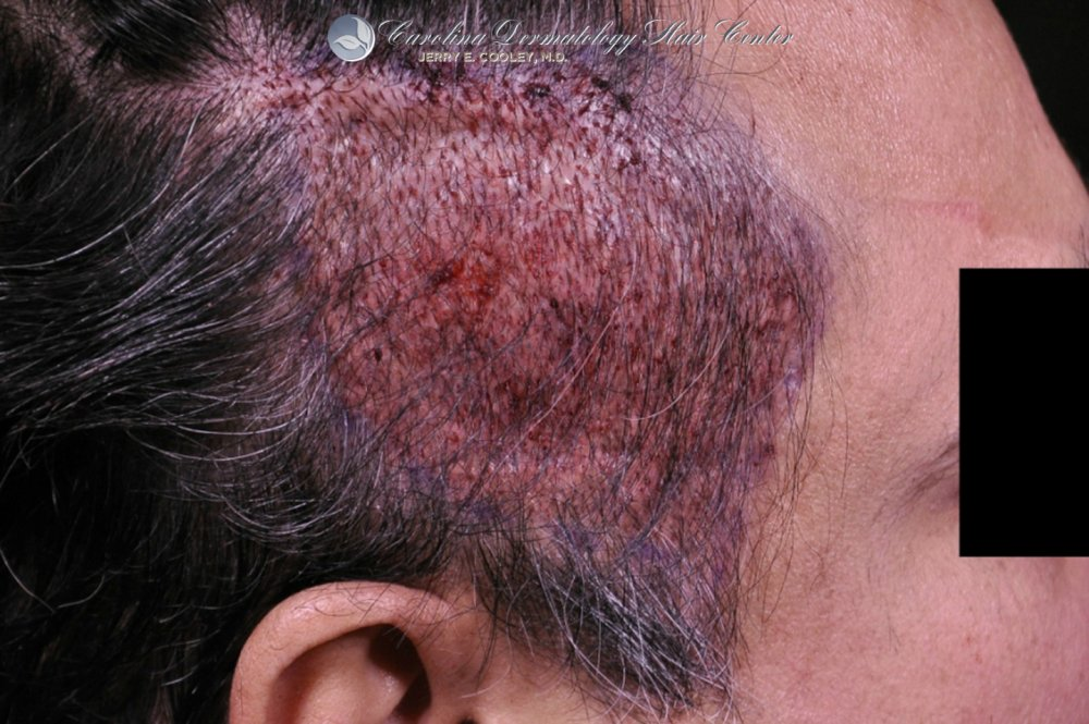 cancer-scar-hair-transplant-repair-Dr Jerry Cooley (2).jpg