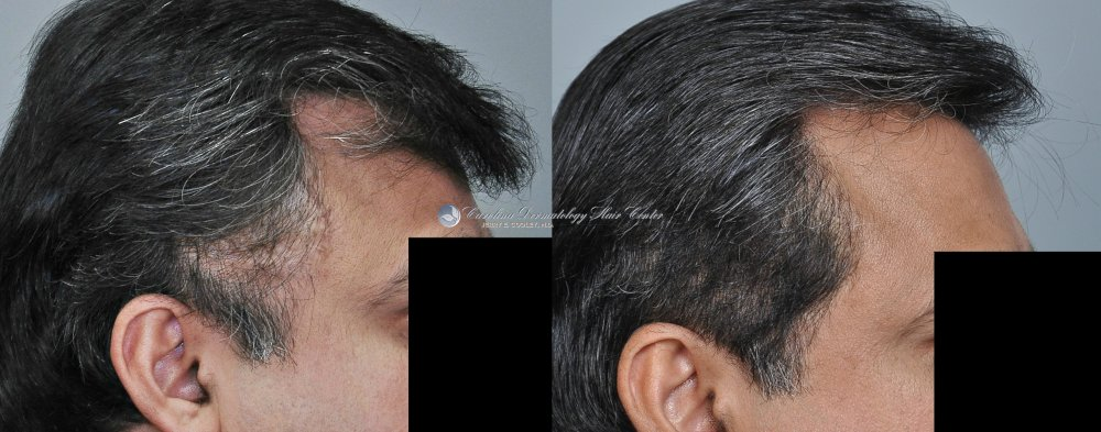 cancer-scar-hair-transplant-repair-Dr Jerry Cooley (3).jpg