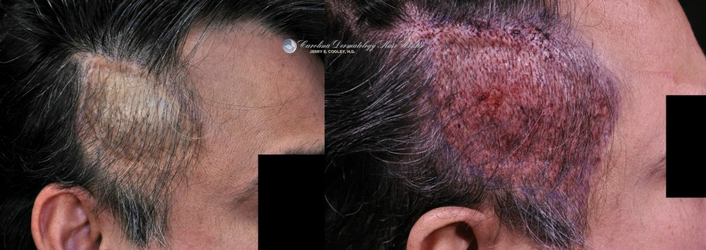 cancer-scar-hair-transplant-repair-Dr Jerry Cooley (4).jpg