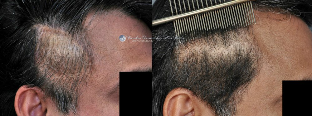 cancer-scar-hair-transplant-repair-Dr Jerry Cooley (5).jpg