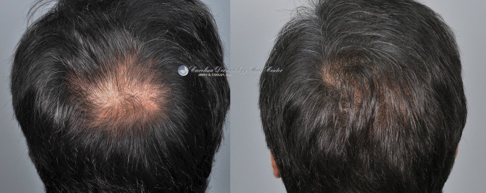 cancer-scar-hair-transplant-repair-Dr Jerry Cooley (7).jpg