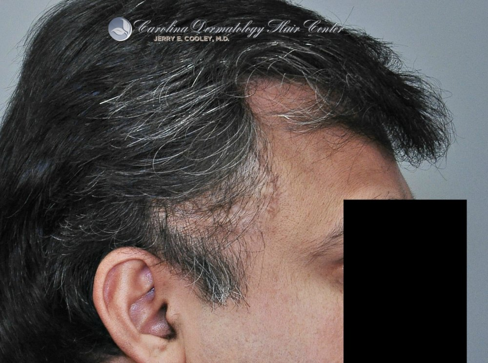 cancer-scar-hair-transplant-repair- Dr Jerry Cooley.jpg