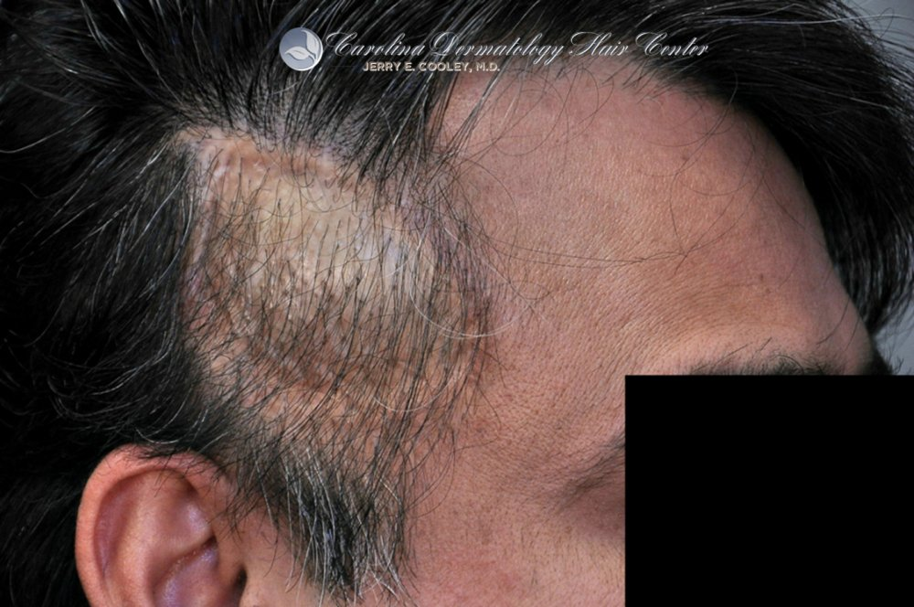 cancer-scar-hair-transplant-repair-Dr Jerry Cooley.jpg