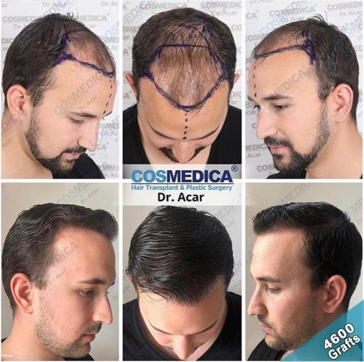 Cosmedica hair transplant.jpg