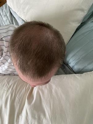 Crown FUE hair transplant.jpeg