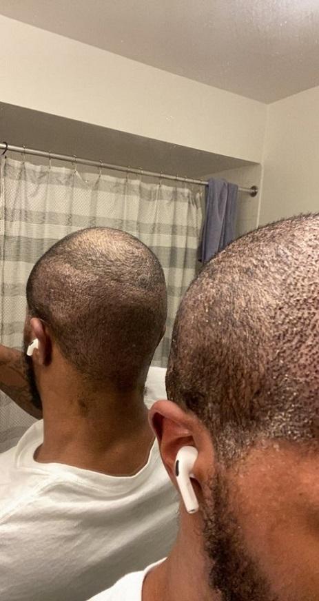Dr Asli Tarcan FUE Hair Transplant 1.jpeg