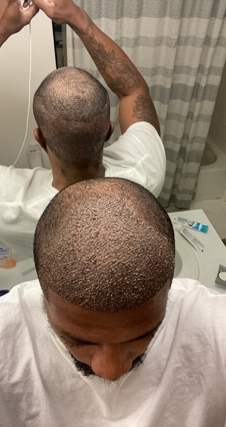Dr Asli Tarcan FUE Hair Transplant 4.jpeg