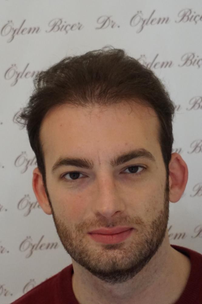 Dr Bicer Fue hair transplant Istanbul 4.png