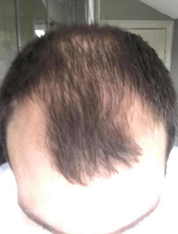 Dr Bisanga FUE hair transplant1.jpeg