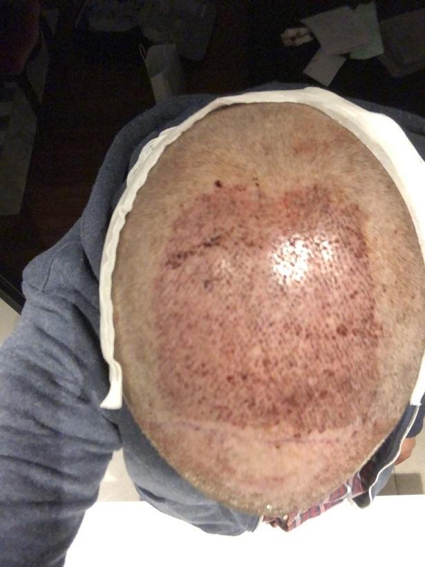 Dr Bisanga FUE hair transplant10.jpeg