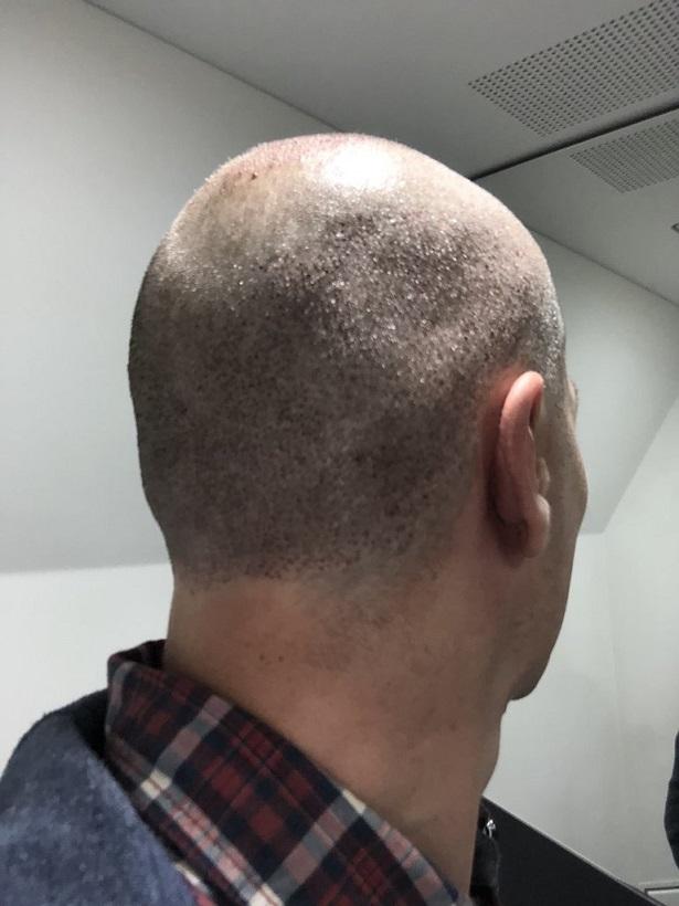 Dr Bisanga FUE hair transplant11.jpeg