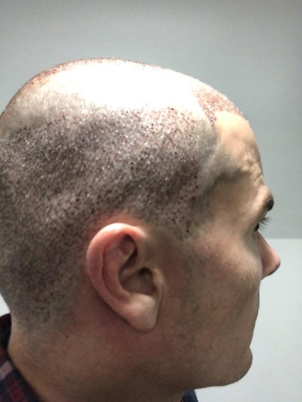 Dr Bisanga FUE hair transplant12.jpeg