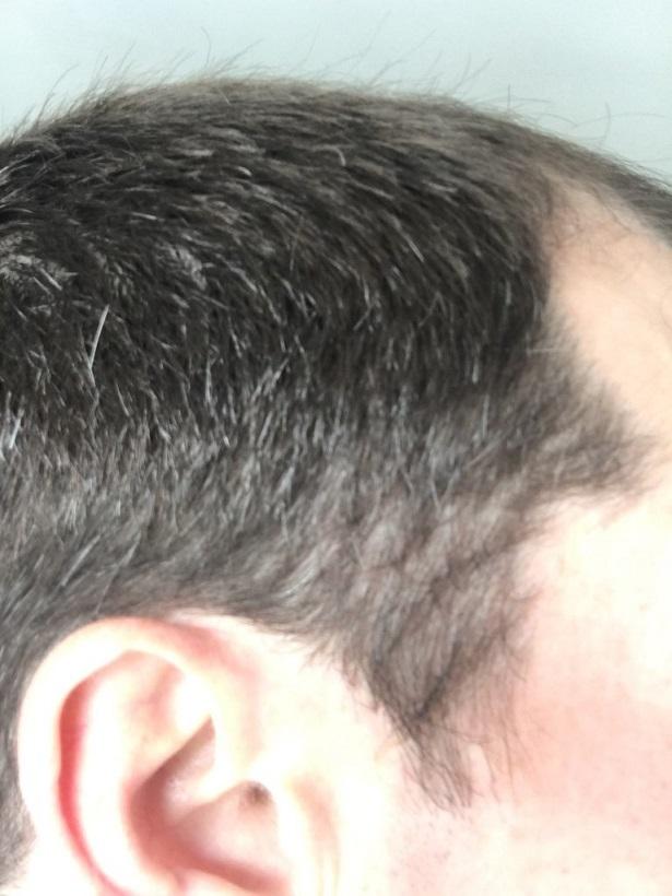 Dr Bisanga FUE hair transplant2.jpeg