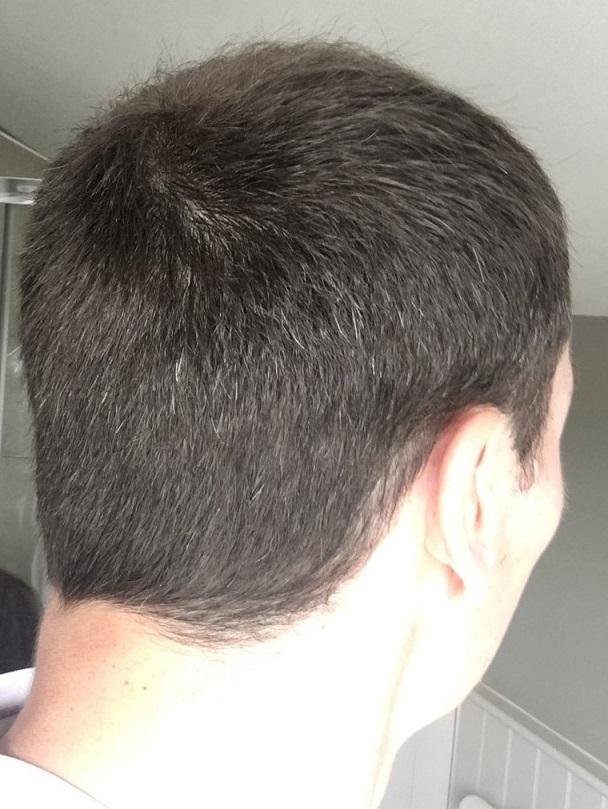 Dr Bisanga FUE hair transplant3.jpeg
