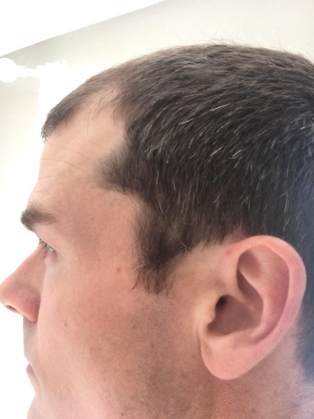 Dr Bisanga FUE hair transplant4.jpeg