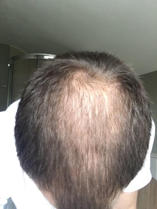 Dr Bisanga FUE hair transplant5.jpeg