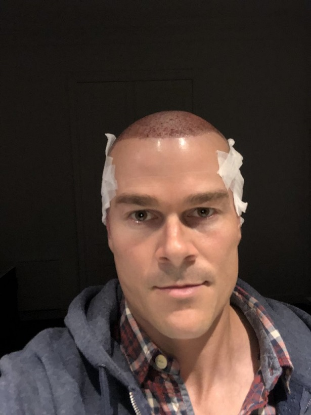 Dr Bisanga FUE hair transplant6.jpeg