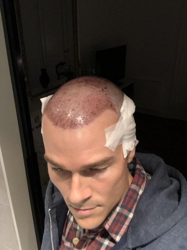 Dr Bisanga FUE hair transplant7.jpeg