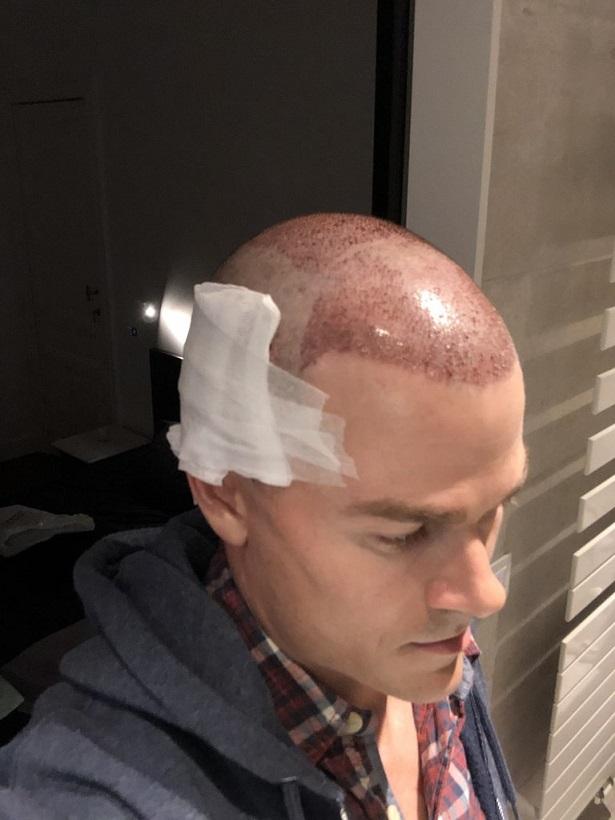 Dr Bisanga FUE hair transplant8.jpeg
