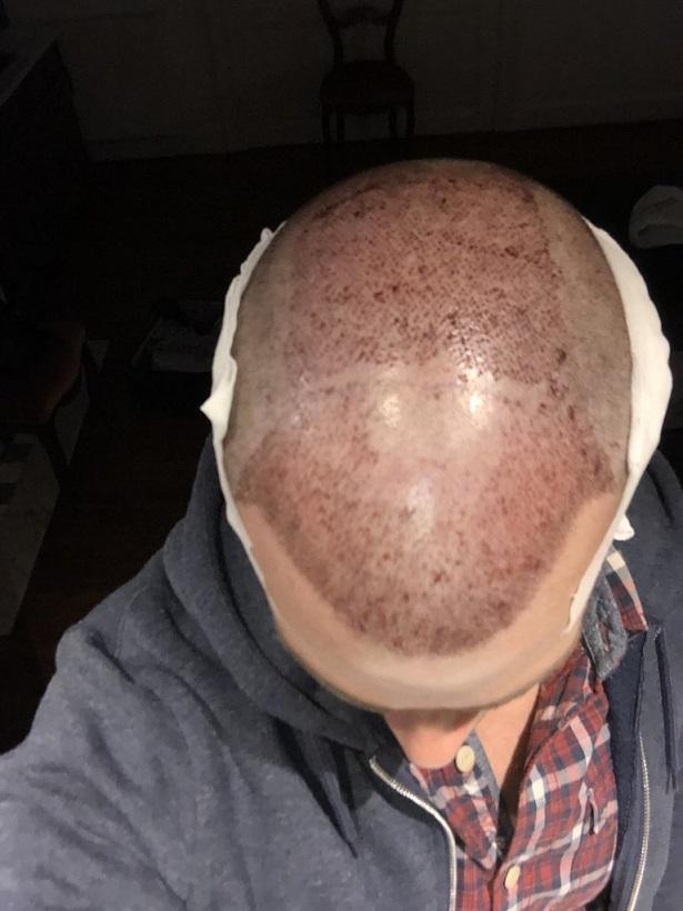 Dr Bisanga FUE hair transplant9.jpeg