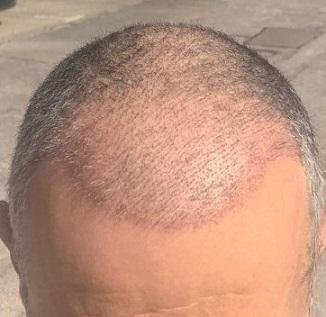 Dr Bisanga hair transplant.jpeg
