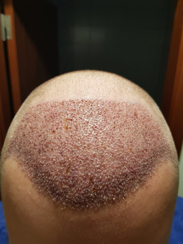 Dr. Bruno Ferreira - 3611 grafts - 28th & 29th of January 2020.jpg