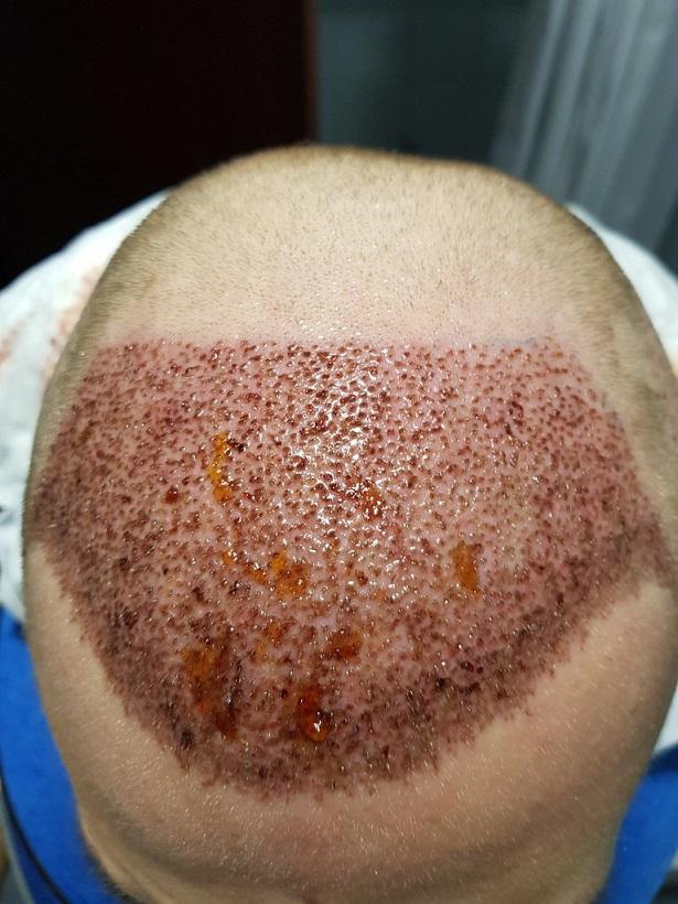 Dr. Bruno Ferreira FUE Hair Transplant.jpg