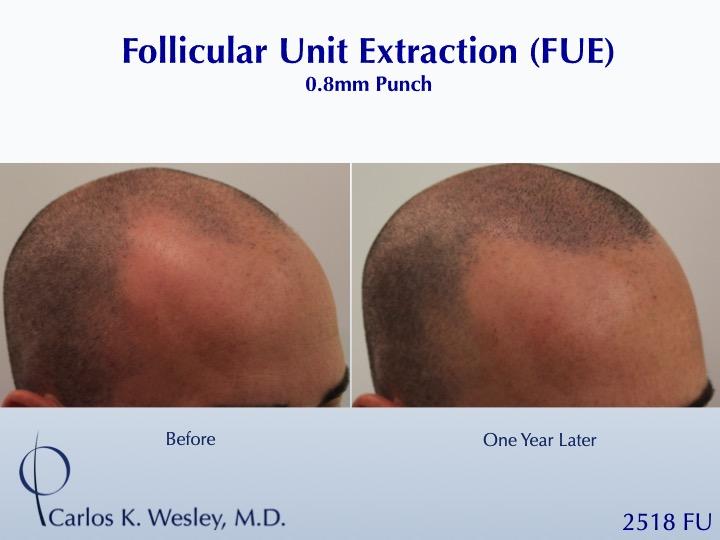 Dr Carlos Wesley Hair Transplant2.jpeg
